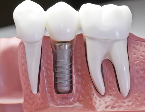 dental implant placement procedure