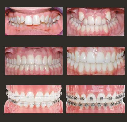 Ortodonska terapija - Pre i posle