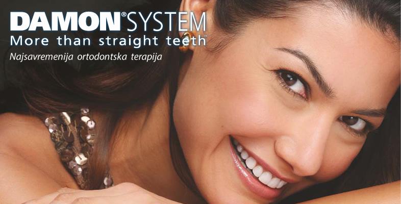 Najsavremenija ortodonska terapija - damon sistem